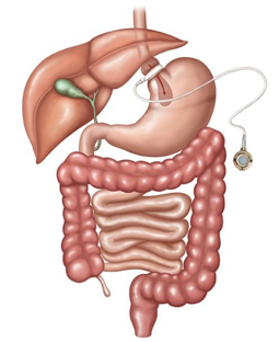 Medical illustration of gastric banding