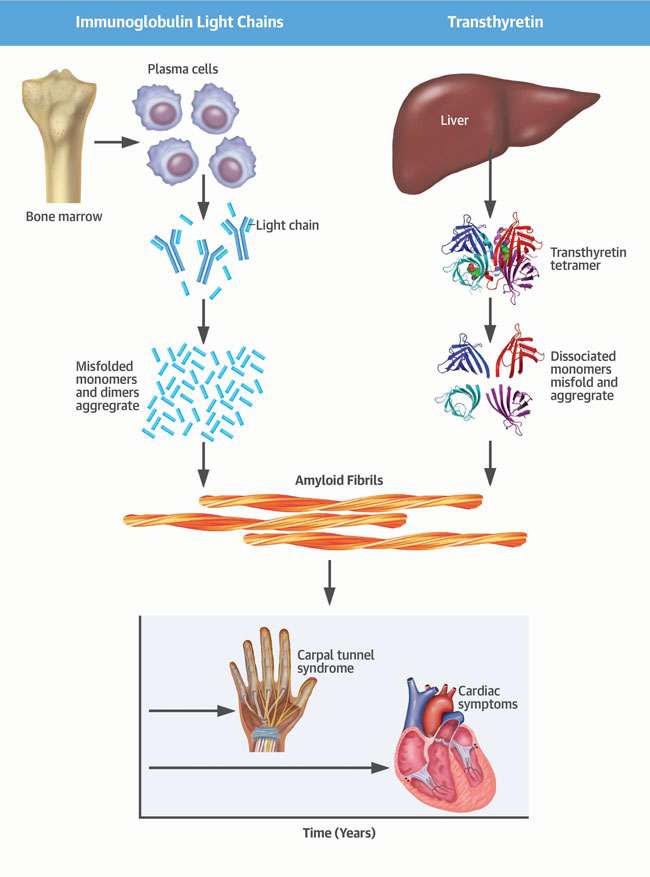 An illustration of amyloidosis
