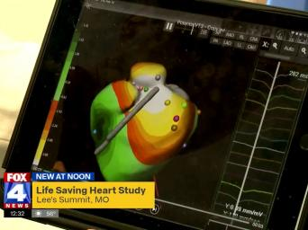 Heart Failure | Saint Luke's Health System