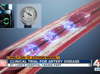 Only on 41 Action News: clinical trial fro artery disease. St. Luke's Hospital taking part. 41 Action News.