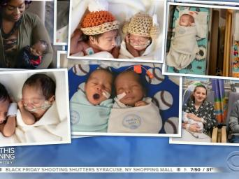 CBS This Morning Saturday. Photos of multiple sets of twins at the Saint Luke's Hospital NICU